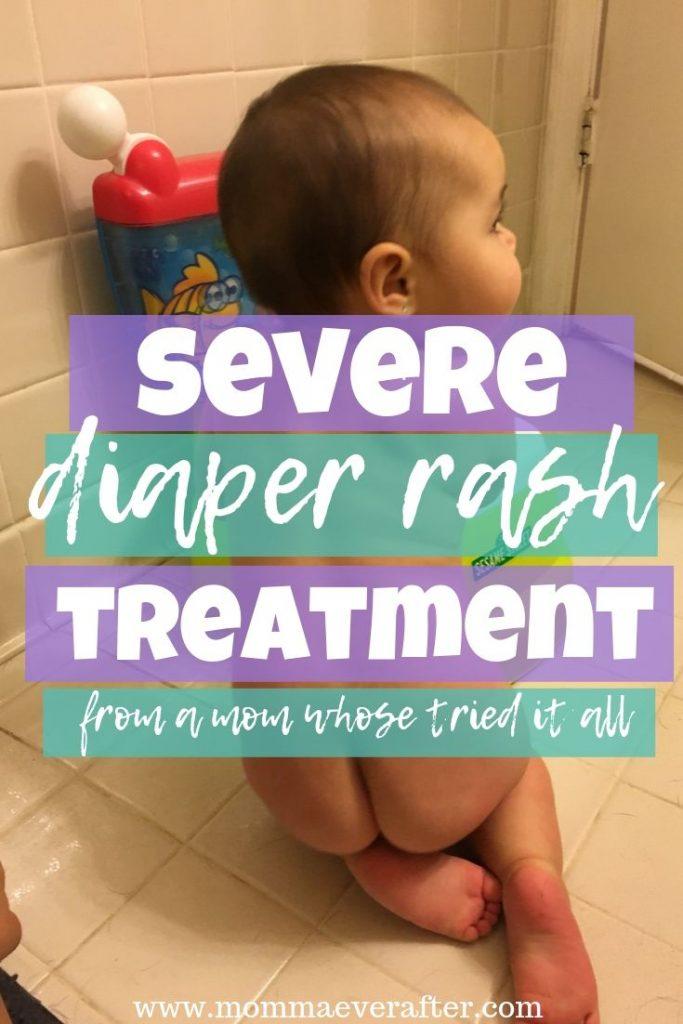 severe diaper rash treatment