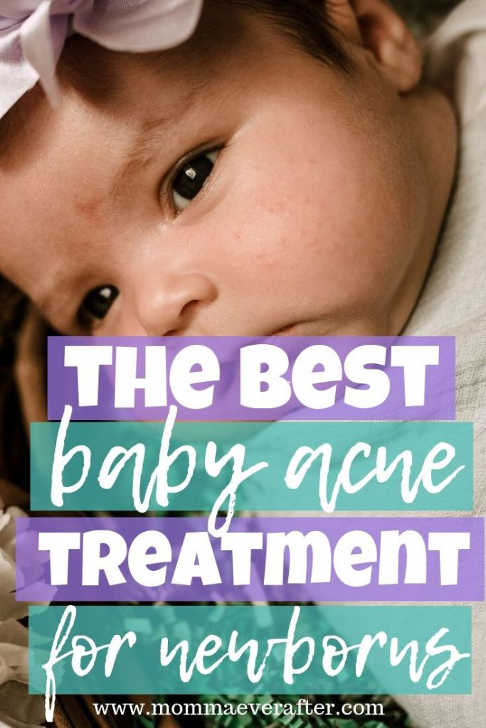 the best baby acne treatment for newborns