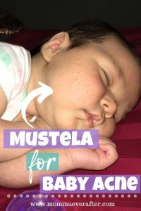 how do you use Mustela to treat baby acne